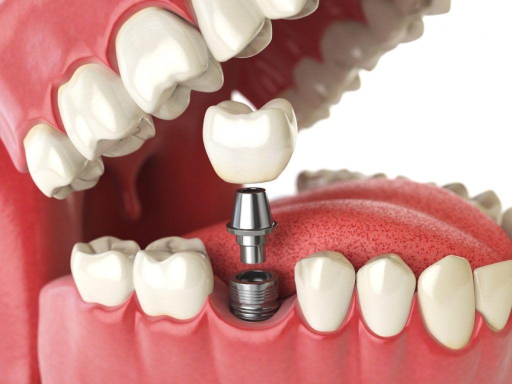 После имплантации зубов в Китае
