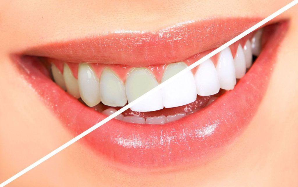 Курение влияет на зубы