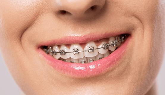 Статья - выравнивание зубов у взрослых в китае