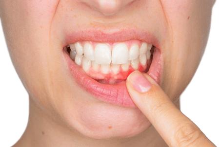 Методы лечения кровотечения десен